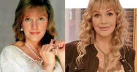 Пластические операции Елены Прокловой: до и после